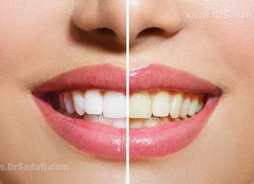 Teeth Whitening (Bleaching): In-office vs. at Home